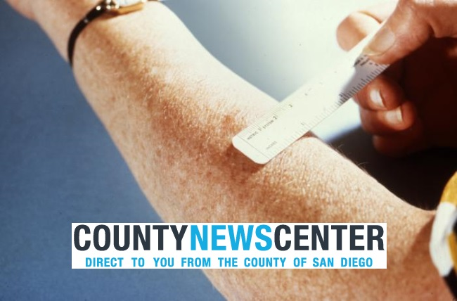 SD County News Reports Tuberculosis Case at Mar Vista Academy  Dig Imperial Beach
